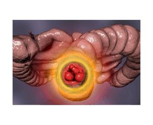 problem z hemoroidami