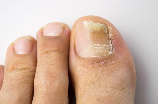 chore paznokcie przebarwienia znikną po zastosowaniu kremu fungolock