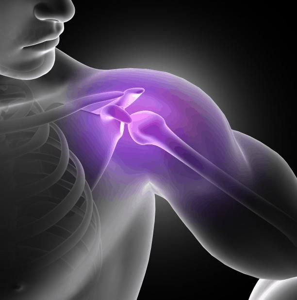 motion energy na ból stawów np. barku