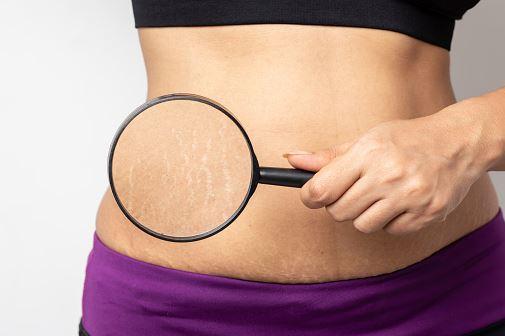 Revamin strech mark krem skutecznie usuwa rozstępy niezależnie czy są wynikiem zmian hormonalnych czy genetycznych