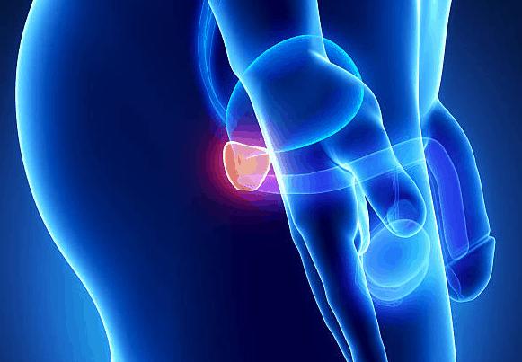 składniki urotrin wspomagają leczenie powiększonej prostaty i problemów z oddawaniem moczu