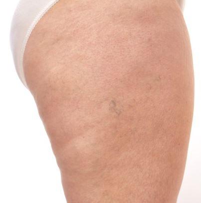 Revamin strech mark krem usuwa rozstępy na udach nogach pośladkach