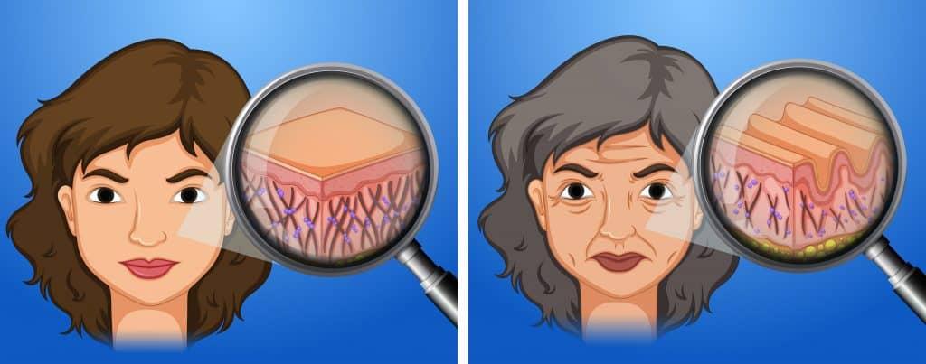 zmarszczki do naturalny proces starzenia się skóry